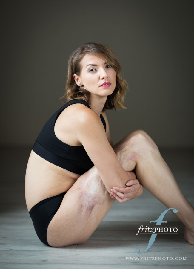 Photo portrait of burn survivor in the studio